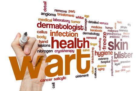 callus: Wart word cloud Stock Photo