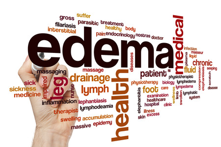 Edema word cloud concept