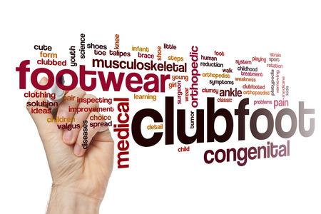 Clubfoot word cloud concept