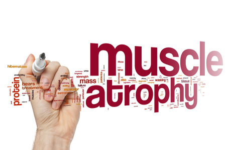 atrophy: Muscle atrophy word cloud Stock Photo