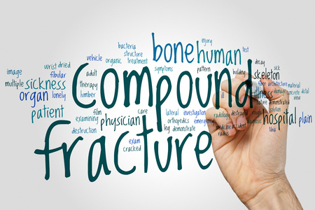 Compound fracture word cloud concept on grey background. Stock Photo