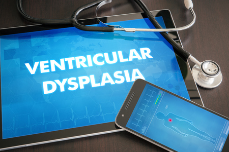 dysplasia: Ventricular dysplasia (heart disorder) diagnosis medical concept on tablet screen with stethoscope. Stock Photo