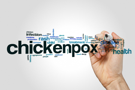 Chickenpox word cloud on grey background.