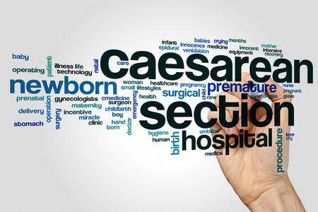 premature: Caesarean section word cloud concept on grey background.