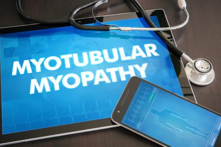myopathy: Myotubular myopathy (neurological disorder) diagnosis medical concept on tablet screen with stethoscope.
