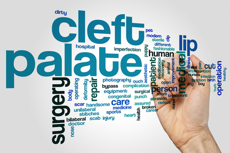 unilateral: Cleft palate word cloud concept on grey background.