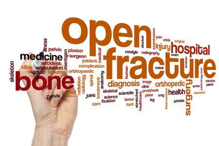 Open fracture word cloud concept