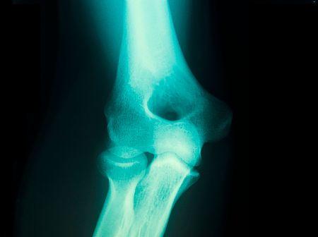 male arm: closeup radiograf�a de un joven var�n h�mero del brazo en la parte superior
