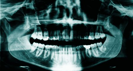 Panoramic dental x-ray of a young adult male