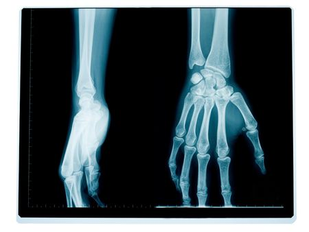 x-ray of the front and side of a hand and wrist of a middle aged woman Stock Photo