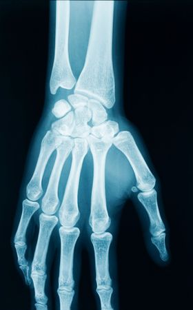 radiography of a middle aged woman