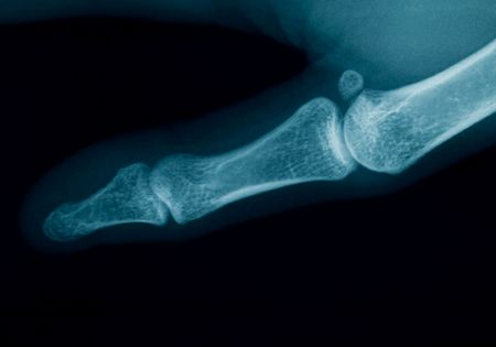 radiography of a middle aged woman finger