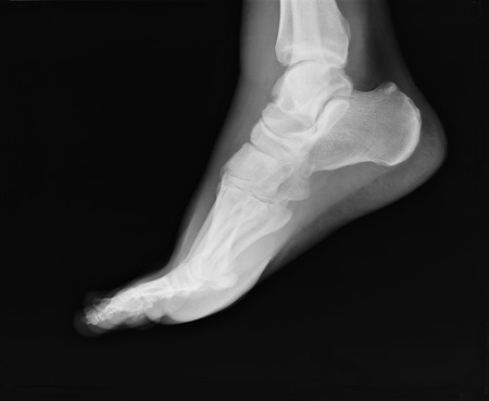 xray: foot xray  with ankle joint visible