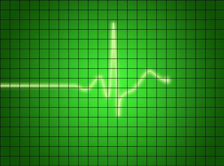 ekg signal on green screen. medical osciloscope screen. photo