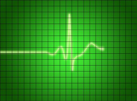 ekg signal on green screen. medical osciloscope screen. photo