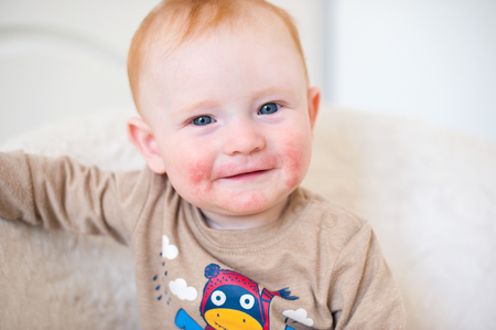 Red-haired boy with atopic dermatitis