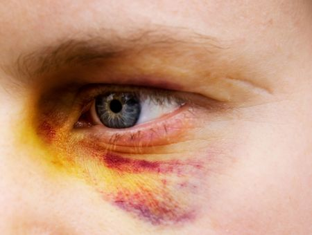 beaten woman: Black eye detail of a woman - purple yellow and black