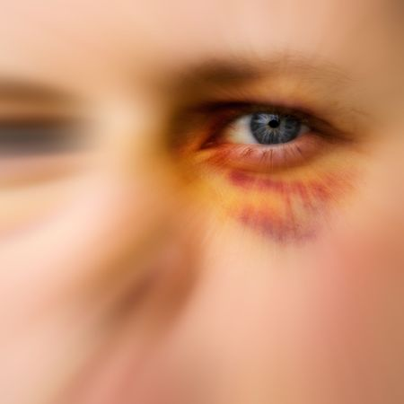 cruelty: Black eye detail of a woman - purple yellow and black