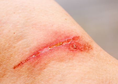 burn: A burn scar that is partly healed
