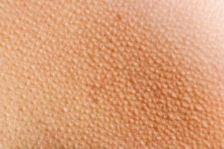 epiderme: La peau de l'homme avec la chair de poule contre le froid