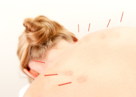 Female acupuncture patient showing good redness at the needle points, a sign of good response to the treatment photo