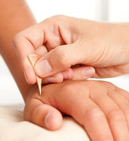acupuntura china: La mano de un joven el tratamiento masculino que recibieron la acupuntura con una herramienta Yoneyama