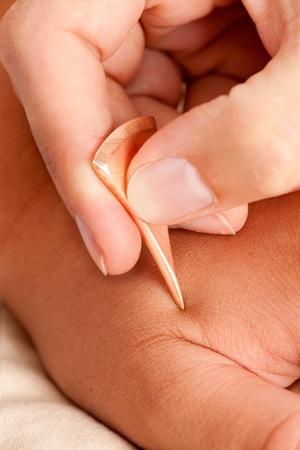 akupressur: Makro Detail Yoneyama Akupunktur-Tool in Shonishin Akupunktur eingesetzt