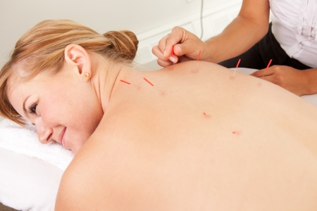 stimulate: Female acupuncturist stimulating needles in the Back Shu acupuncture points