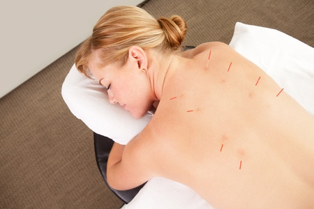 filiform: Acupuncture patient with needles along Back Shu points, showing good signs of redness