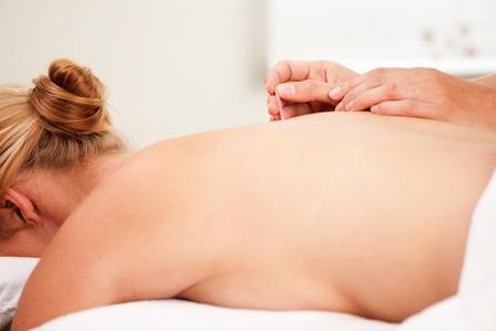 acupuncturist: Detalle de un lado la inserci�n de un nedle la acupuntura en los puntos Shu de nuevo