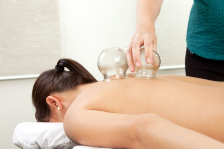 cupping therapy: Woman receiving a cupping treatment at an acupuncture clinic