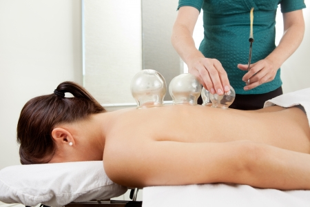 cupping therapy: Acupuncture therapist placing a cup on the back of a female patient Stock Photo