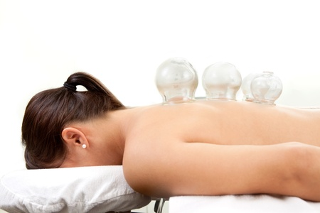 cupping: Detail of several cups placed on back of female in acupuncture cupping treatment