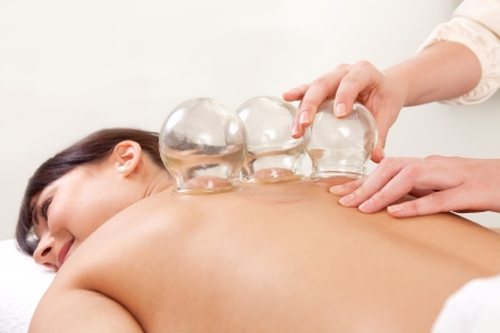 cupping: Acupuncture therapist removing a fire cupping glass from the back of a young woman Stock Photo