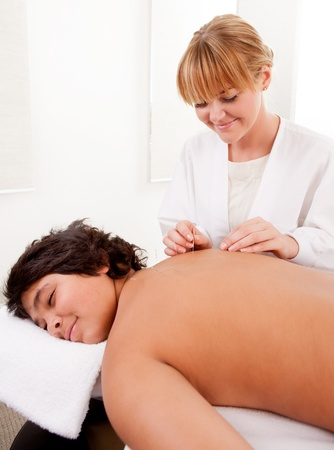 acupuncturist: Acupuncturist giving a back treatment to a young male