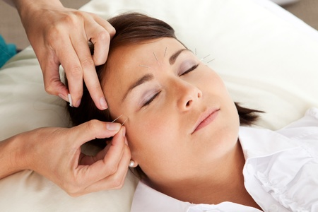 Professional acupuncturist placing a needle near the eye of a patient photo