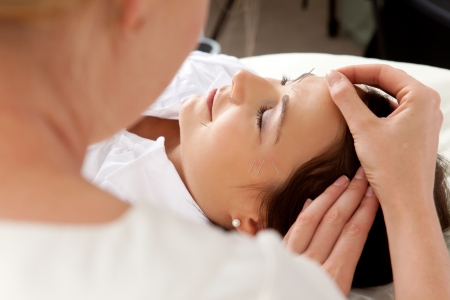 Over the shoulder shot of professional acupuncturist placing needle in face of patient Stock Photo - 10989207