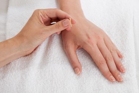acupuncturist: Detalle de la acupunturista introduce una aguja en el intestino grueso 4 (LI4) punto Foto de archivo