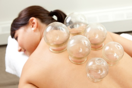 cupping therapy: Acupuncture Fire cupping detail on womans back
