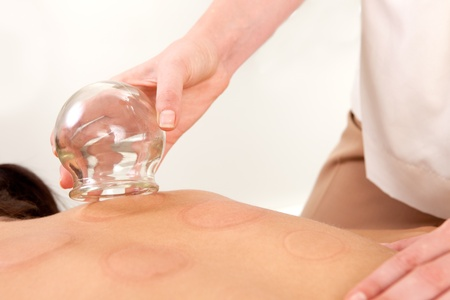 cupping therapy: Detail of the hand of an acupuncture therapist removing a fire cupping bulb Stock Photo