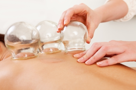 cupping therapy: Detail of an acupuncture therapist removing a glass globe in a fire cupping procedure Stock Photo