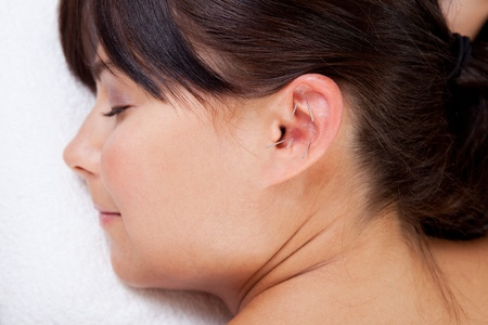 eastern health treatment: Attractive female relaxing while receiving an acupuncture treatment on the ear