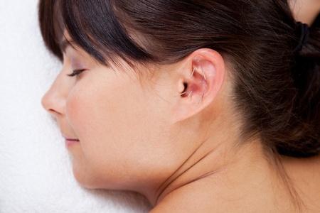 acupuncturist: Mujer atractiva relajante mientras recibe un tratamiento de acupuntura en la oreja