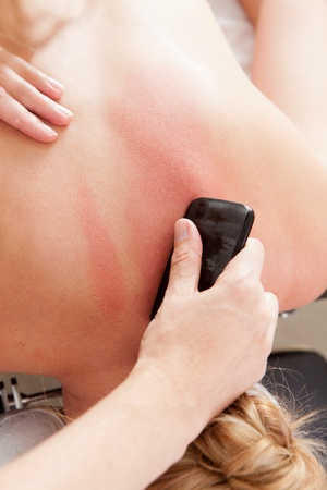 sha: Overhead view of woman receiving gua sha acupuncture treatment on back