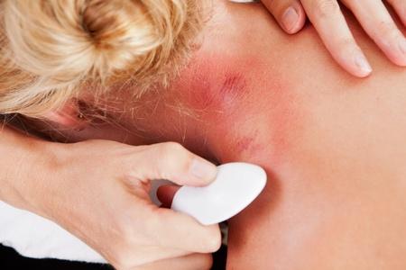 acupuntura china: Detalle del cuello que muestra enrojecimiento después de gua-sha tratamiento de la acupuntura