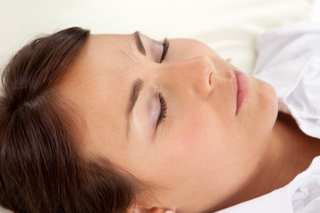 Detail of woman with acupuncture needles in face photo