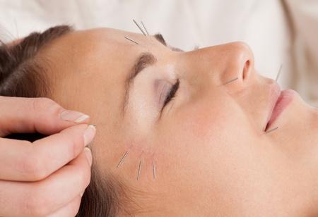 acupuntura china: Mujer que recibe tratamiento de acupuntura facial