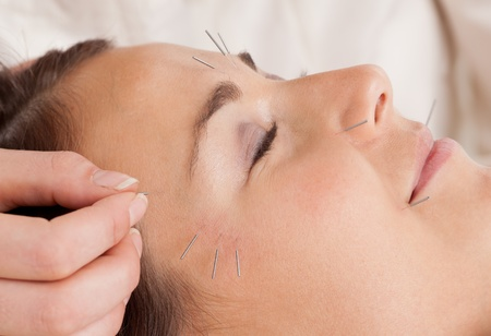 rejuvenating: Woman receiving facial acupuncture treatment Stock Photo