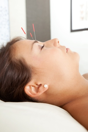 Detail of acupuncture patient with three needles in forehead photo