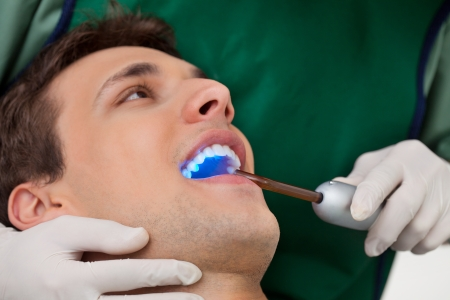 sealant: Patient having dental checkup with ultraviolet light at dentists clinic Stock Photo